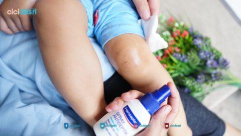 mengobati luka anak tanpa sakit