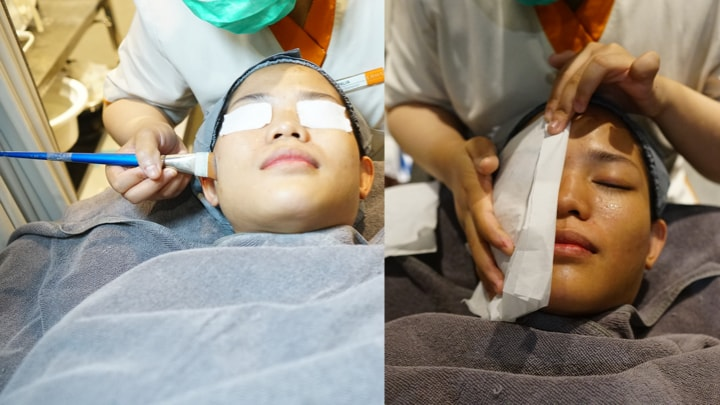 pengolesan cairan facial untuk mengangkat sel kulit mati dan komedo